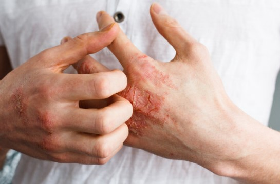 Eczema or Atopic Dermatitis